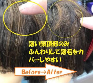 頭頂部の薄毛が目立たない髪型のビフォーアフター