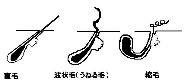 くせ毛(うねる毛)と直毛の違い